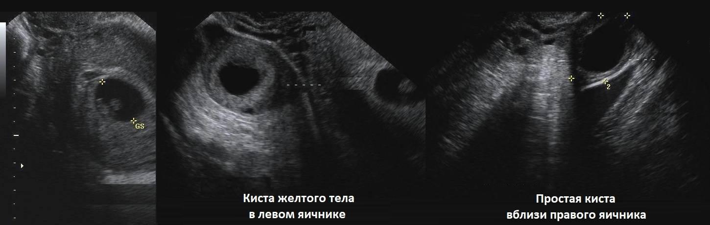 Можно ли перепутать кисту яичника с беременностью