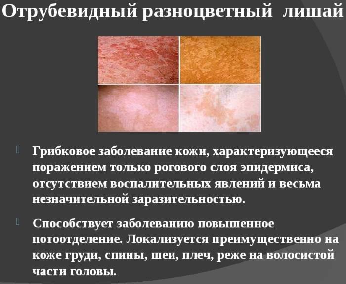 Розовый лишай у ребенка - лечение, признаки и симптомы, фото