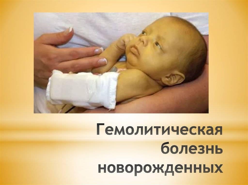 Гемолитическая болезнь новорожденных | компетентно о здоровье на ilive