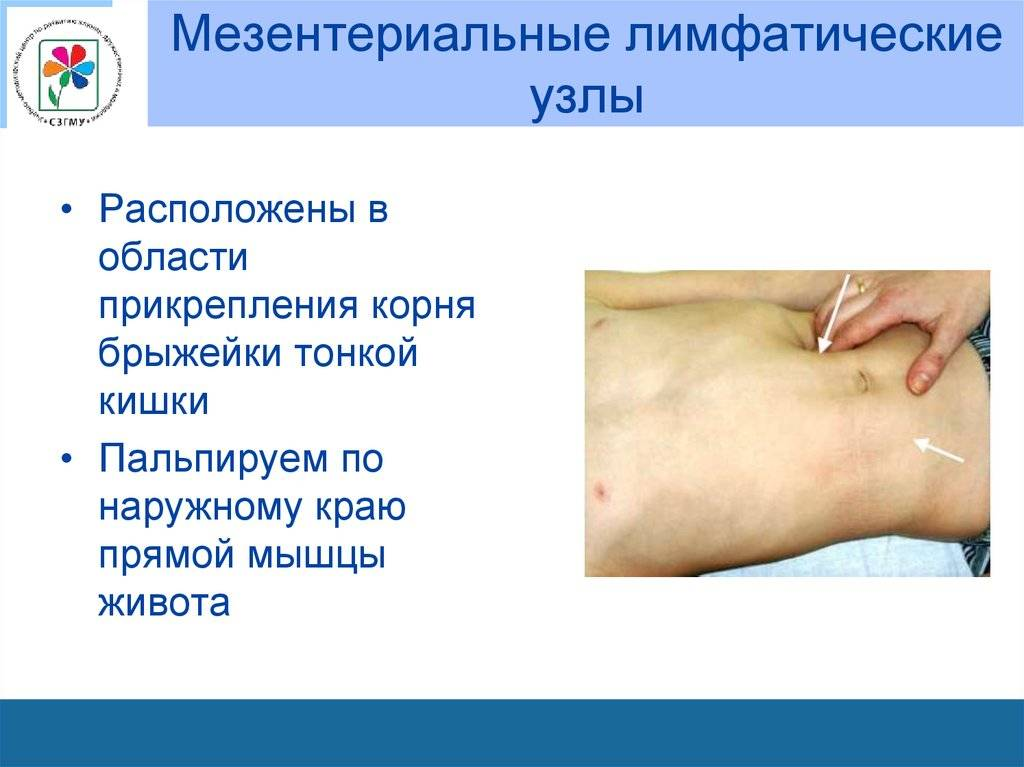 Воспаление лимфоузлов в брюшной полости у детей - причины увеличения (мезентериального лимфаденита)