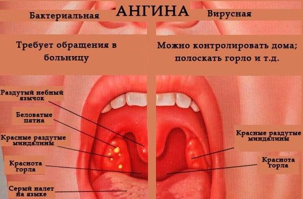 Ангина у ребенка: симптомы и лечение. советы педиатра