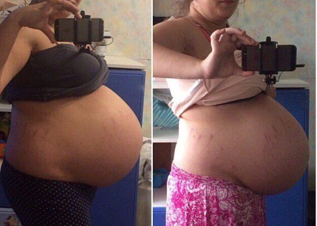 Когда опускается живот перед родами: признаки, ощущения беременной