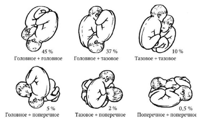 Все о многоплодной беременности