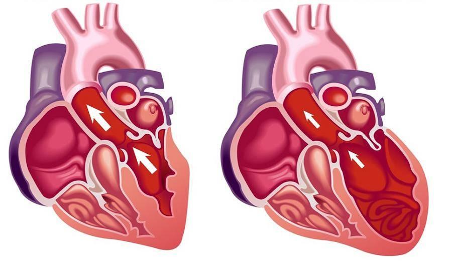 Кардиопатия у детей: виды, симптомы и диагностика, лечение кардиопатии