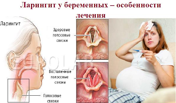 Фарингит при беременности - бережное лечение, влияние на плод, последствия на раннем сроке
