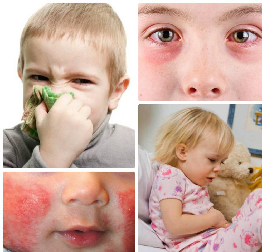 Лечение и симптомы пищевой аллергии у детей
