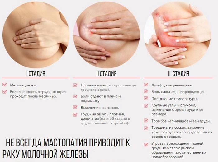 Болезненность груди после зачатия. спустя какое время после зачатия начинает болеть грудь. признаки ранней беременности