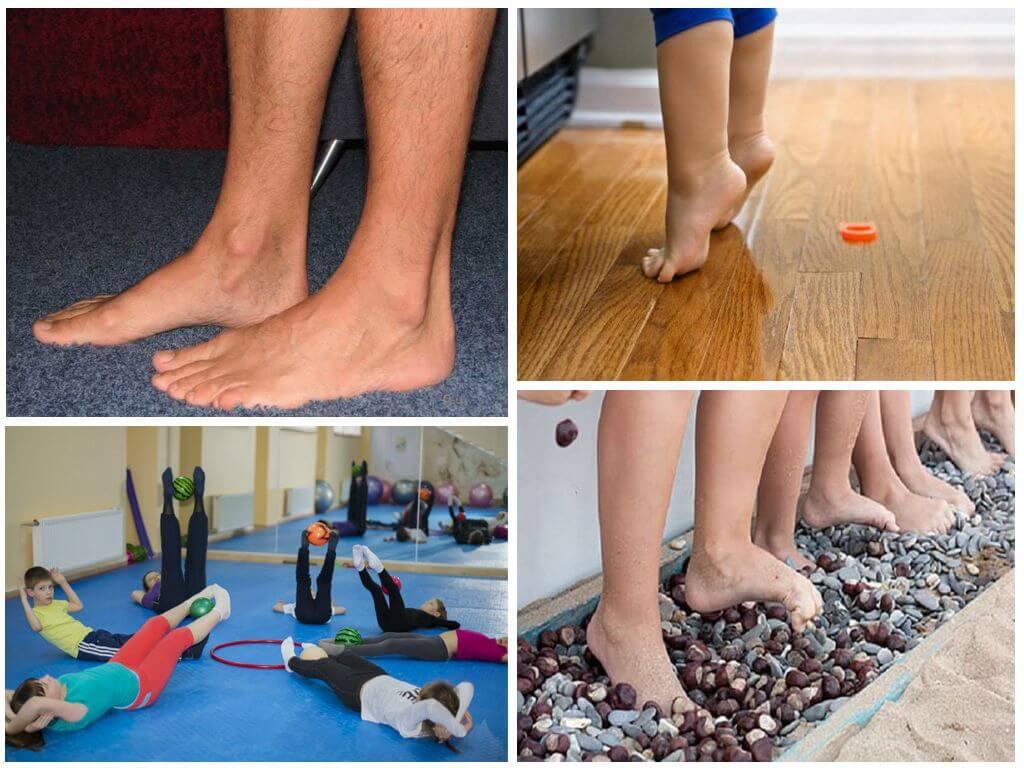 Вальгусная деформация стопы у детей: последствия и исправление