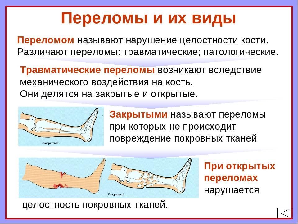 Переломы и вывихи у детей (клиническая лекция) :: трудный пациент