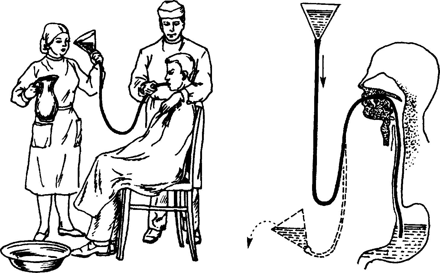 Промывание желудка. техника и алгоритм промывания желудка при отравлении. промывание желудка у детей. показания и противопоказания.