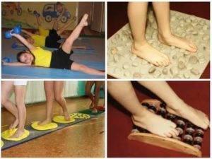 Косолапость у детей: признаки с фото, лечение с помощью упражнений, массажа и обуви