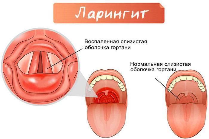 Фарингит у детей: симптомы острой и хронической формы, методы лечения