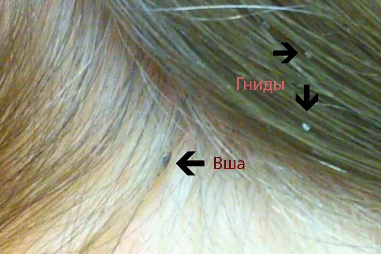 Почему чешется голова, но вшей нет: причины и лечение сильного зуда и сухой кожи, что делать?