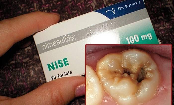 Обезболивающее для детей 6 лет. что делать, если у ребенка болит зуб — какими лекарствами и средствами можно обезболить в домашних условиях? показания к использованию обезболивающих препаратов детям - зубной врач