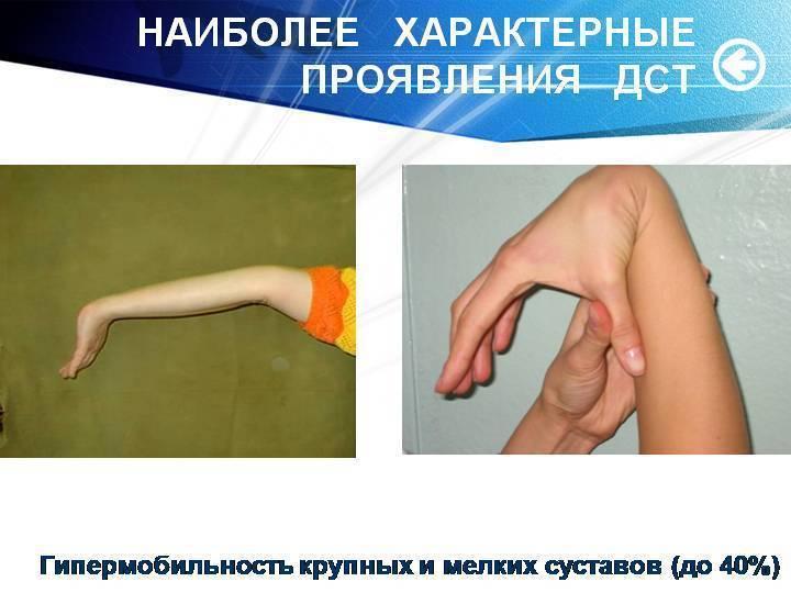 Основные симптомы, диагностика и методы лечения при дисплазии соединительной ткани у детей