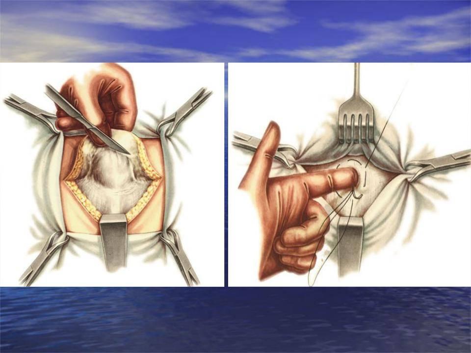 Лечение пупочной грыжи без операции у взрослых