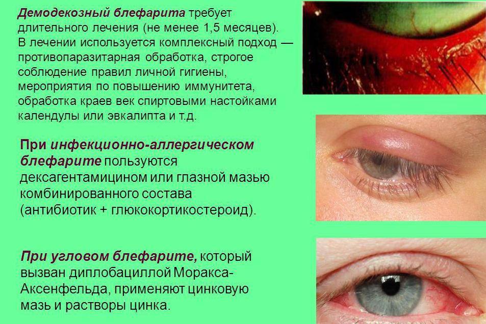 Заболевания глаз у детей: список с названиями и описанием, симптомы, лечение, причины, предупреждение детских глазных болезней