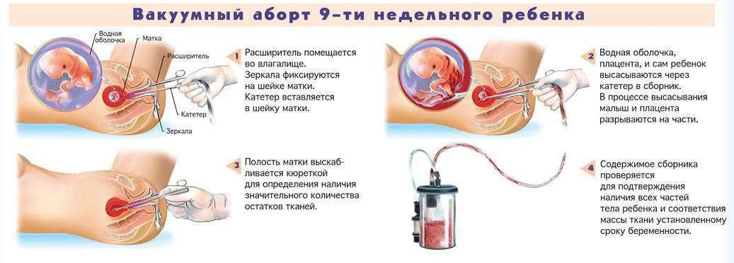 Жажда у беременных — ищем причину