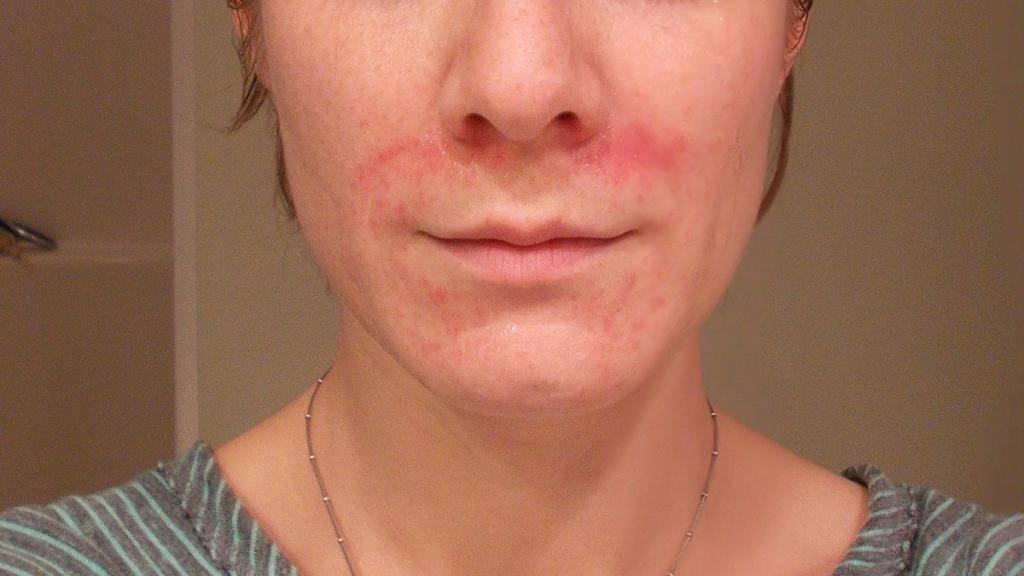 Периоральный дерматит: лечение на лице у взрослых и детей, фото, причины возникновения, диета