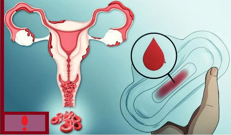 Кровь во время овуляции, коричневые кровянистые выделения в середине цикла, овуляторное и имплантационное кровотечение как признак беременности