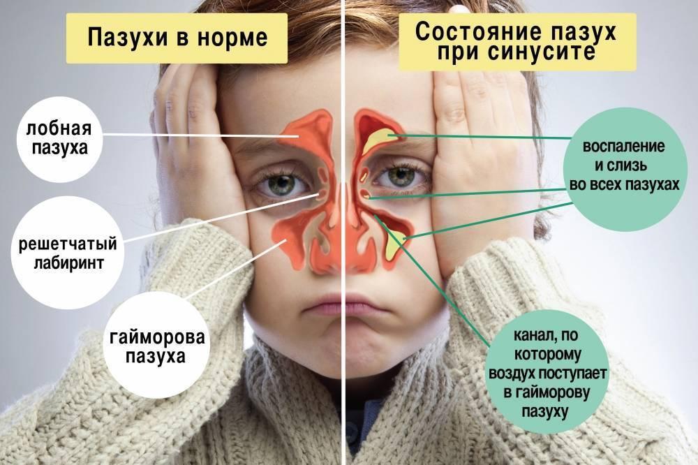 Причины и лечение соплей с кровью у детей разного возраста + видео