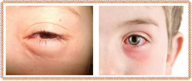 Мешки под глазами у ребенка: причины, почему появляются отеки и припухлость до и после 1 года