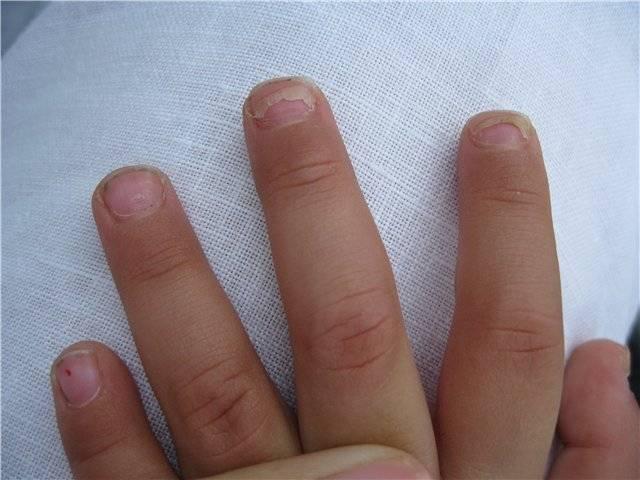 У ребенка слоятся ногти: основные причины и решение