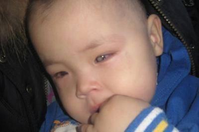 Ретинопатия у недоношенных детей – причины, симптомы и лечение