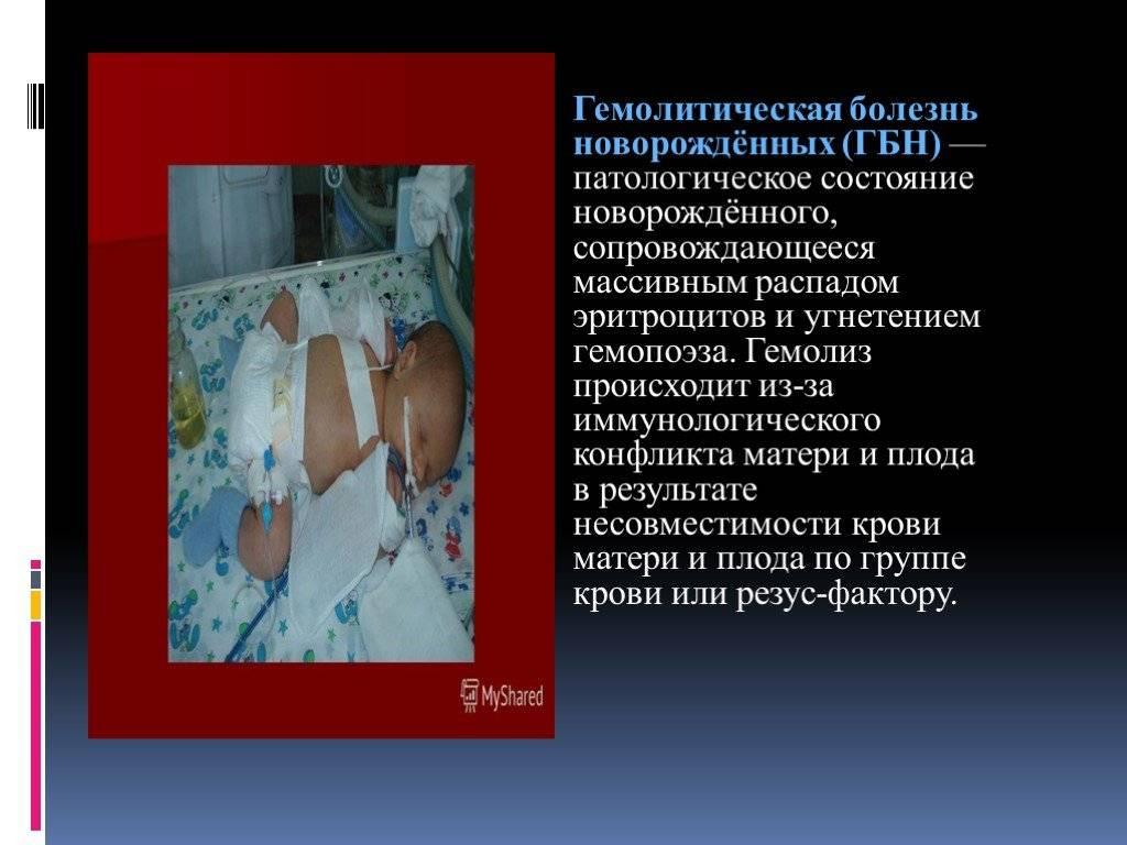 Что надо знать о гемолитической болезни новорожденных по группе крови?