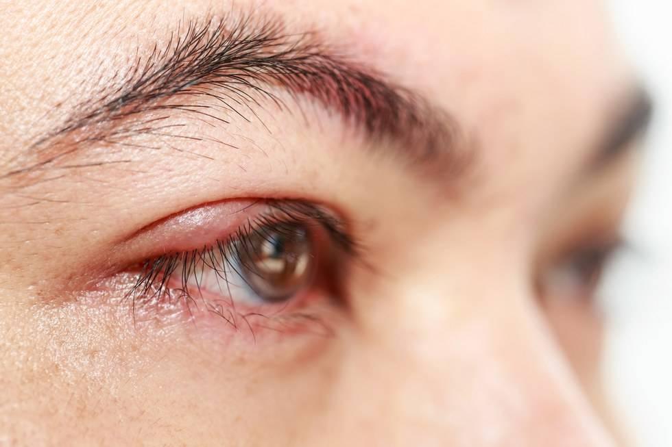 Ячмень на глазу: как лечить в домашних условиях быстро народными средствами, гомеопатия