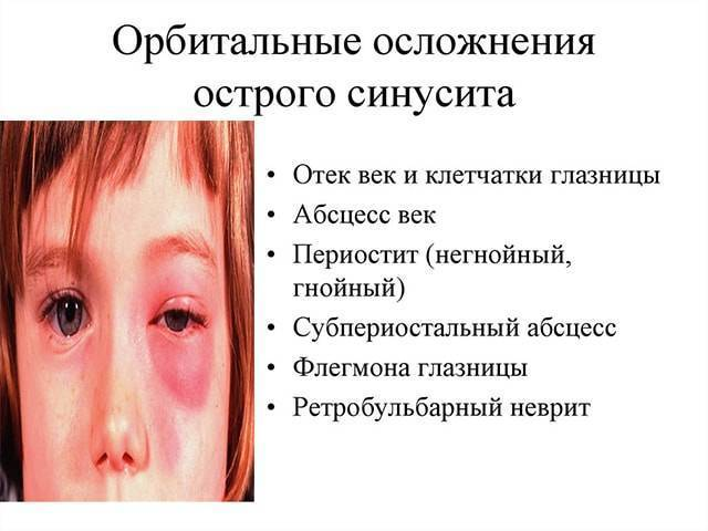 Синусит у детей: симптомы, лечение в домашних условиях народными средствами
