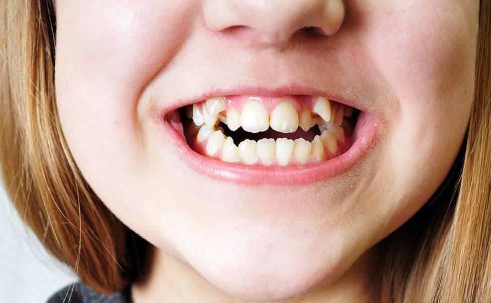 Почему у ребенка растут кривые зубы — зубы