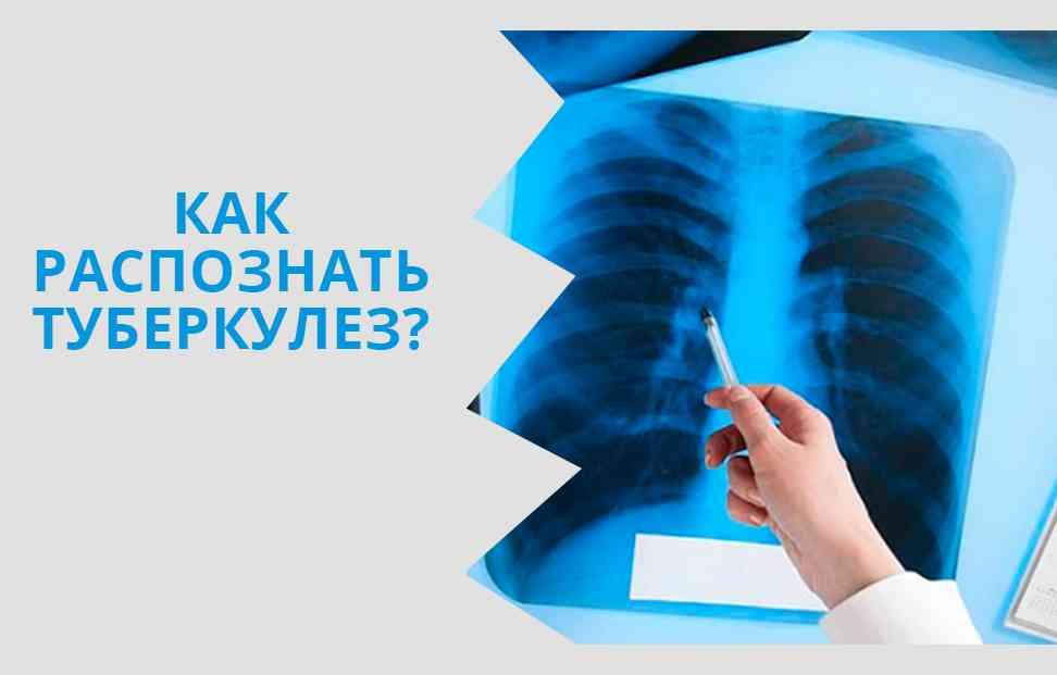 Ранние симптомы туберкулеза легких у детей, первые признаки и стадии