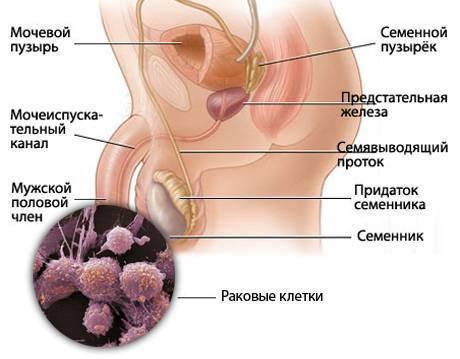 Cинехия крайней плоти у мальчиков / mama66.ru