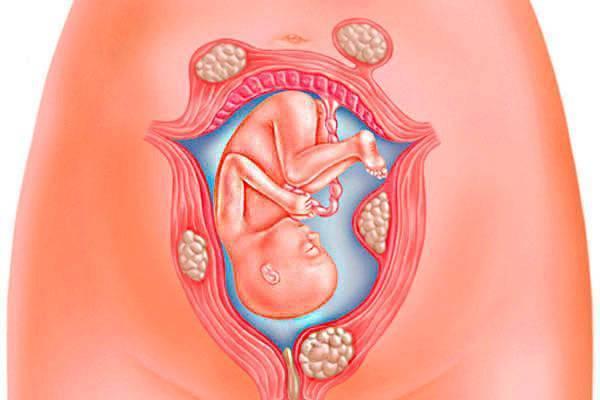 Насколько опасно состояние вибрации в животе при беременности, и как это ощущается?