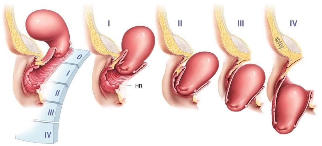Опущение матки после родов: симптомы, лечение, признаки патологии и что делать женщинам, чтобы избавиться от недуга