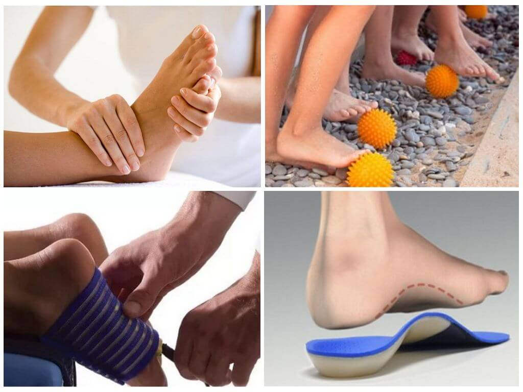 Плоскостопие у детей. причины, симптомы, лечение и профилактика плоскостопия   здоровье детей