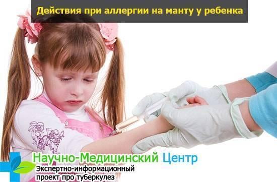 Противоаллергические препараты для детей перед прививкой манту