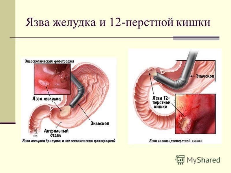 Язва желудка и двенадцатиперстной кишки - лечение, симптомы, причины