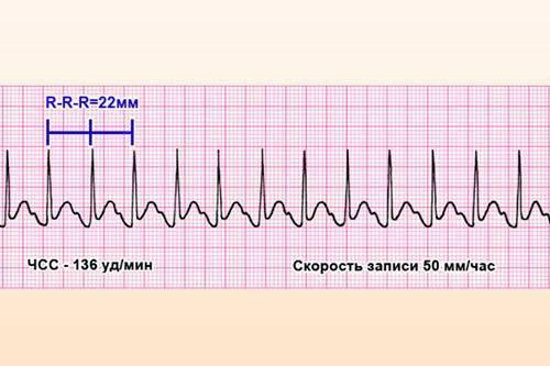 Синусовая брадикардия у детей и подростков, а также новорожденных: легкая, умеренная и выраженная степени