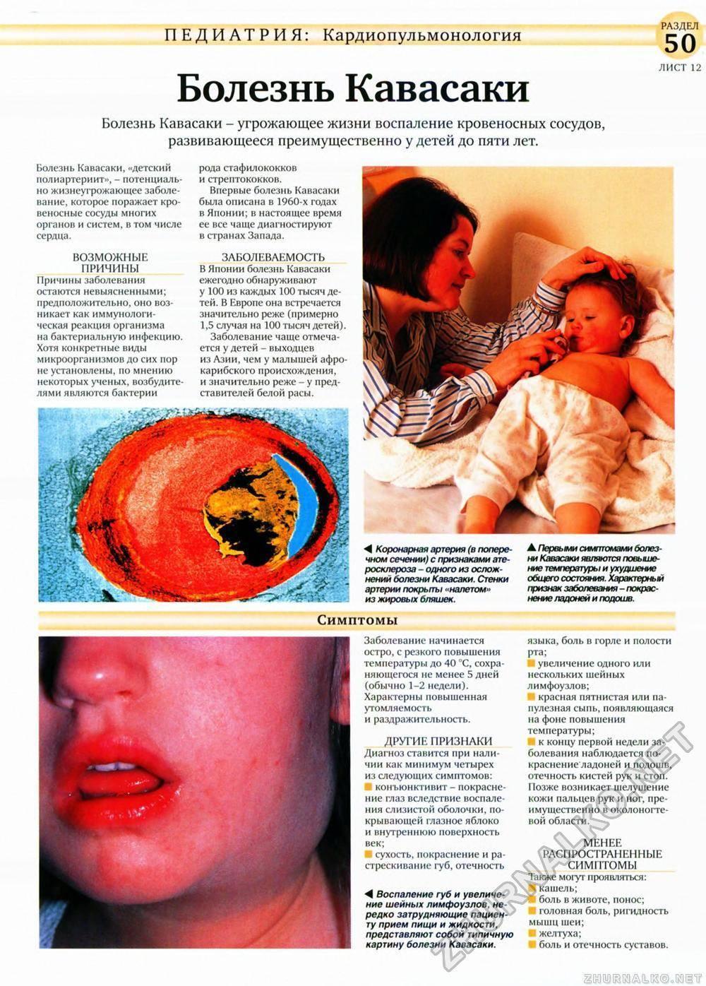 Синдром кавасаки: причины, симптомы, диагностика и лечение
