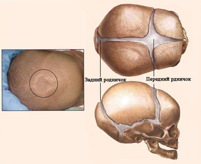 Маленький родничок у новорожденного последствия - всё о грудничках