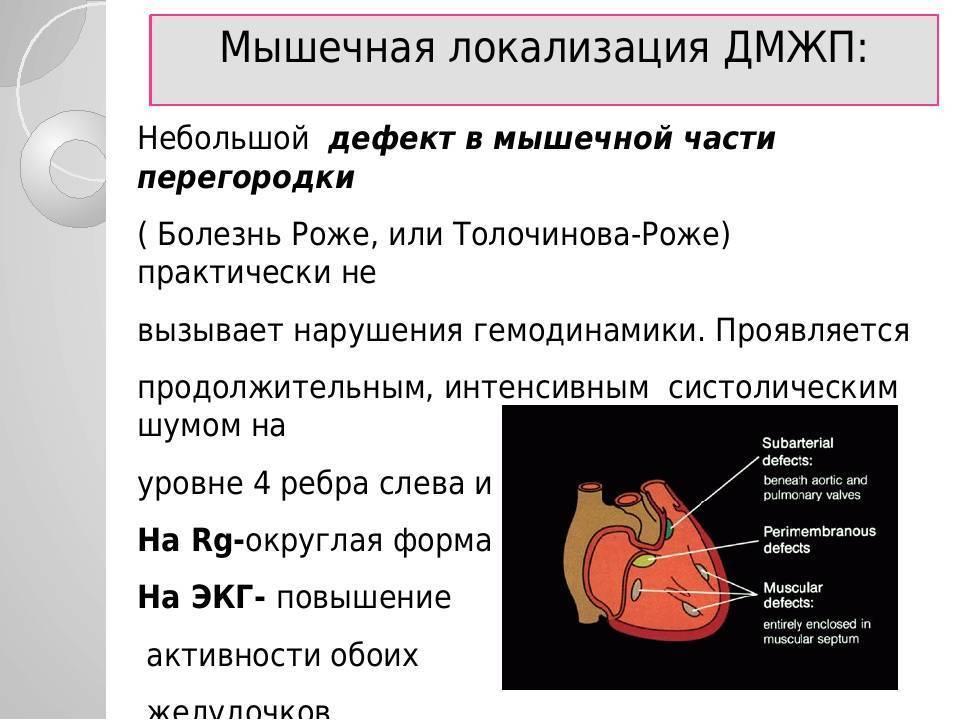 Дефект межжелудочковой перегородки у новорожденного — заболевания сердца