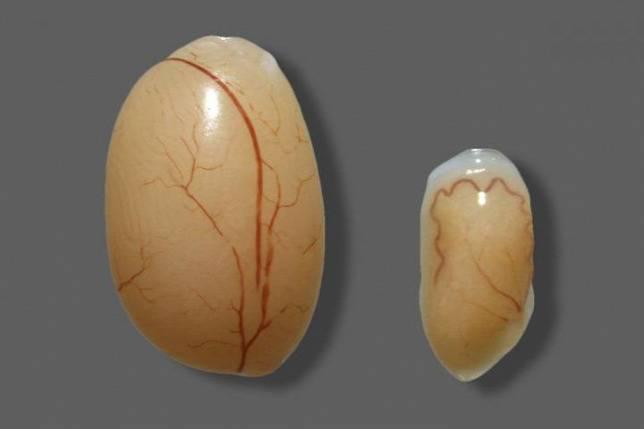 Гипоплазия яичек у мальчиков лечение
