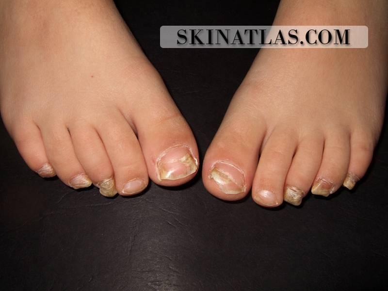 У ребенка слоятся ногти на ногах: причины патологии
