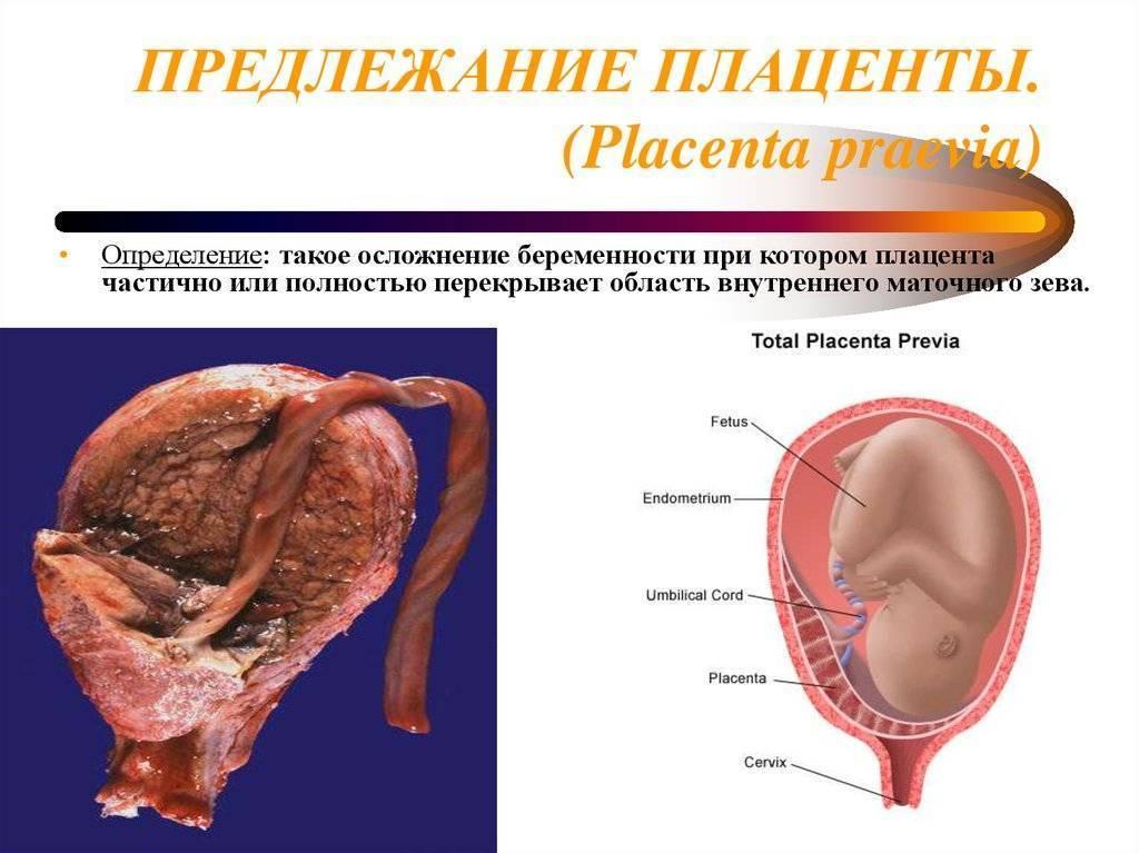 ᐉ какой зрелости должна быть плацента перед родами. когда формируется плацента при беременности? что такое плацентарный барьер - ➡ sp-kupavna.ru