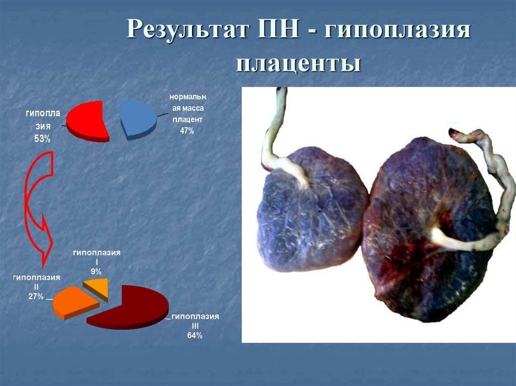 Плацента: строение, функции, зрелость, гиперплазия, предлежание, отслойка     материнство - беременность, роды, питание, воспитание