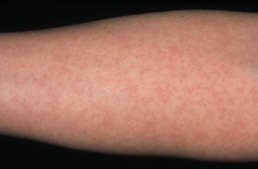 Розеола детская — нужно ли лечить ребёнка от этой болезни?