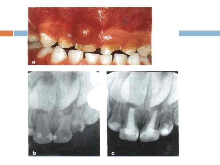 Пульпит молочного зуба у детей – лечение или удаление