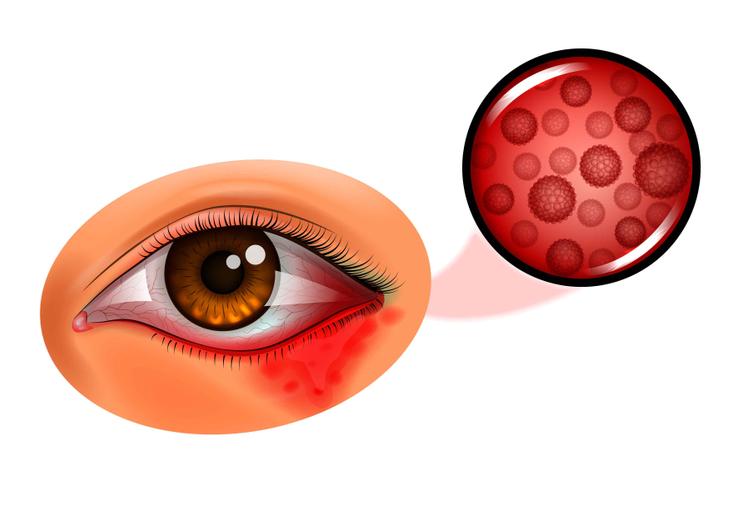 Лечение вирусного конъюнктивита у детей: препараты